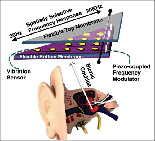 Fig. 10: A bionic ear