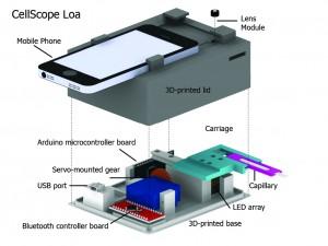 Fig 1: Schematic of Cellscope Loa (Image courtesy - Mike D'Ambrosio & Matt Bakalar, Fletcher Lab, UC Berkeley)