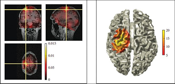 FieldTrip: An Open Source MATLAB Toolbox for Biomedical