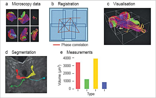 Fig. 2: Some of the main techniques used in the software (a) Stitching plugins helps in gathering different views of the microscopic data, (b) Image registration, (c) Visualisation, (d) Image segmentation and (e) Measurements (Image courtesy: Article titled 'Fiji: An open source platform for biological-image analysis' by Johannes Schindelin et al)