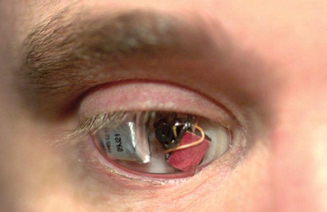 Fig. 4: A man wearing a specialised camera for an eye (Image courtesy: s.telegraph.co.uk)