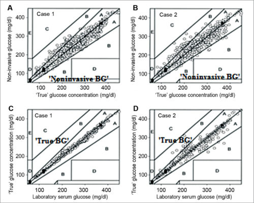 Plot of correlations between true serum glucose invasive concentrations and non-invasive glucose concentrations for cases A and B, and corresponding plots of correlations between invasive (laboratory) serum glucose concentrations and true serum glucose concentrations for cases C and D