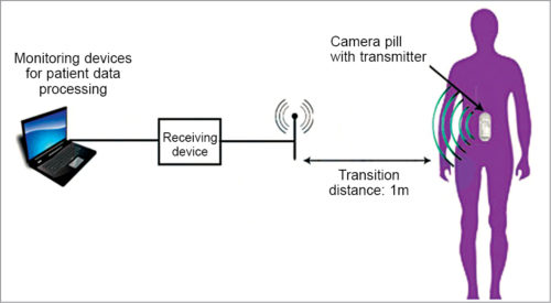 Electronic pill network